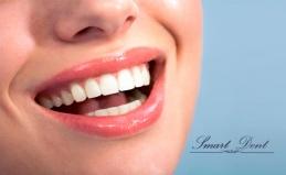 Отбеливание зубов в «Смарт Дент»